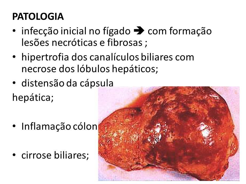 PATOLOGIA infecção inicial no fígado com formação lesões necróticas e fibrosas ; hipertrofia dos canalículos biliares com necrose dos lóbulos hepático
