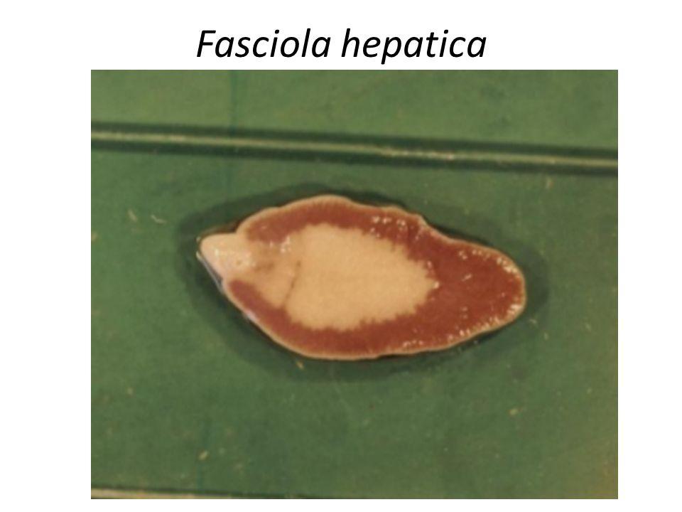 FASE AGUDA : – febre, – aumento doloroso do fígado e diarréia.