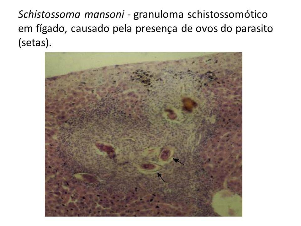 Schistossoma mansoni - granuloma schistossomótico em fígado, causado pela presença de ovos do parasito (setas).