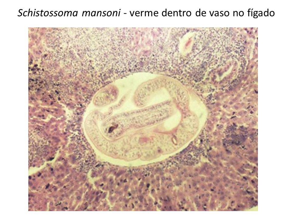 Schistossoma mansoni - verme dentro de vaso no fígado