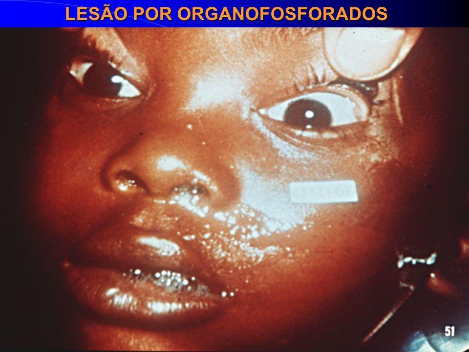 LESÃO POR ORGANOFOSFORADOS