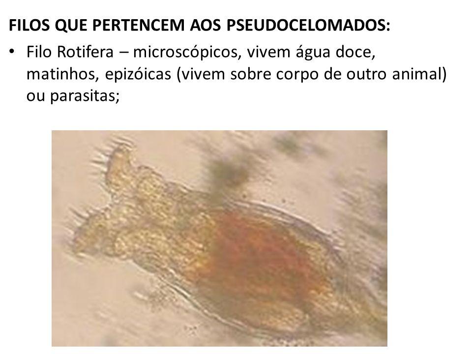 FILOS QUE PERTENCEM AOS PSEUDOCELOMADOS: Filo Rotifera – microscópicos, vivem água doce, matinhos, epizóicas (vivem sobre corpo de outro animal) ou pa