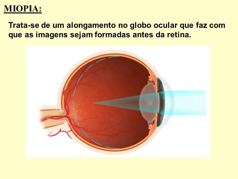 DEFEITOS DA VISÃO (AMETROPIAS): Astigmatismo Catarata Miopia Hipermetropia Presbiopia São inúmeros os defeitos da visão. Vamos citar apenas alguns e c