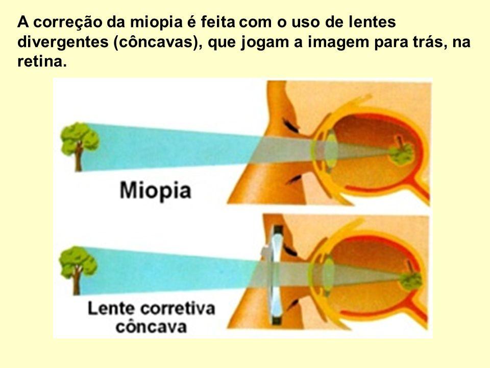MIOPIA: Trata-se de um alongamento no globo ocular que faz com que as imagens sejam formadas antes da retina.
