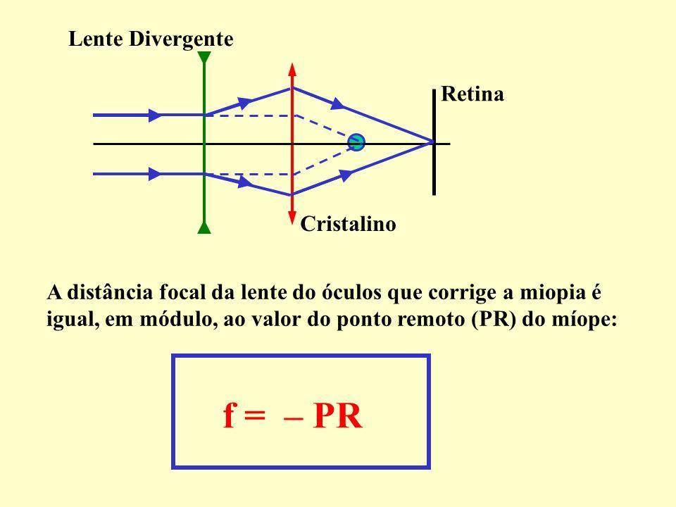 A correção da miopia é feita com o uso de lentes divergentes (côncavas), que jogam a imagem para trás, na retina.