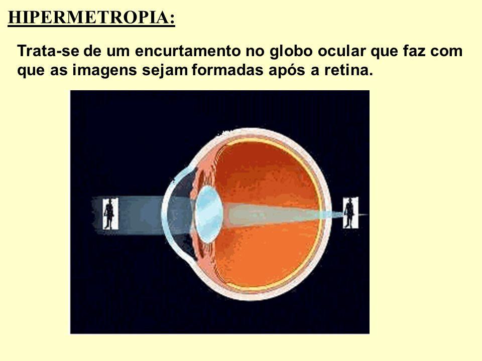 Lente Divergente Cristalino Retina A distância focal da lente do óculos que corrige a miopia é igual, em módulo, ao valor do ponto remoto (PR) do míop