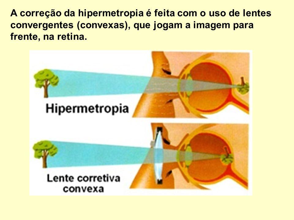 HIPERMETROPIA: Trata-se de um encurtamento no globo ocular que faz com que as imagens sejam formadas após a retina.