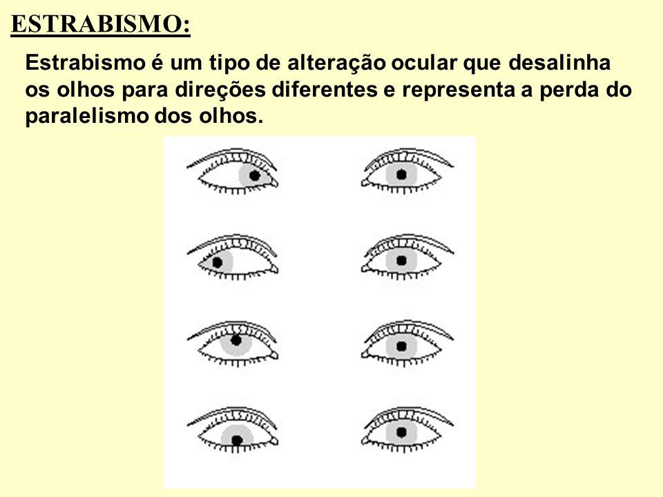 Presbiopia é também conhecida como vista cansada. Trata-se do enfraquecimento do poder de acomodação para a visão de perto devido à perda da elasticid