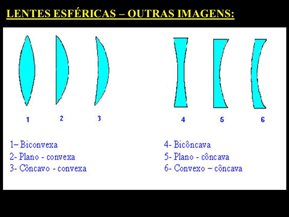 LENTES ESFÉRICAS: BORDAS FINAS BORDAS GROSSAS (CONVEXAS) (CÔNCAVAS) BICONVEXA PLANO CONVEXA CÔNVAVO CONVEXA BICÔNCAVA PLANO CÔNCAVA CONVEXO CÔNCAVA