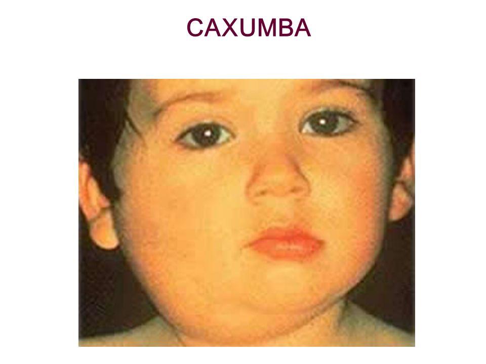 CAXUMBA