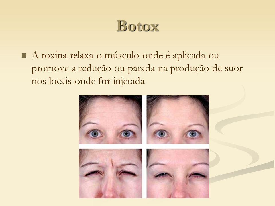 Botox A toxina relaxa o músculo onde é aplicada ou promove a redução ou parada na produção de suor nos locais onde for injetada