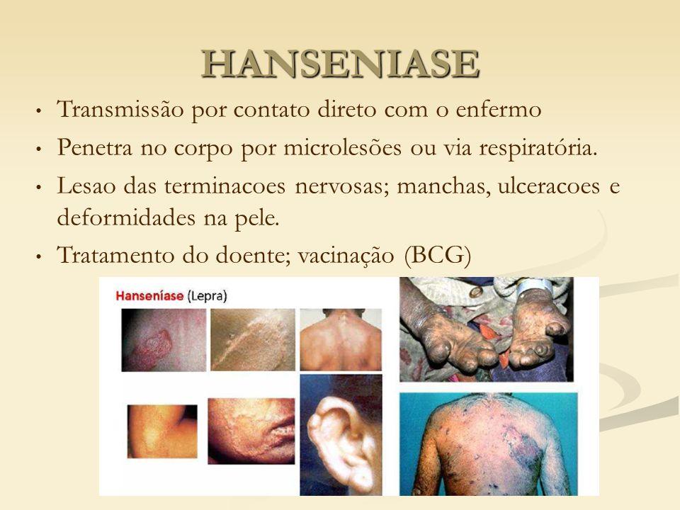 Transmissão por contato direto com o enfermo Penetra no corpo por microlesões ou via respiratória. Lesao das terminacoes nervosas; manchas, ulceracoes