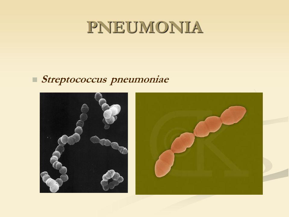 Streptococcus pneumoniae PNEUMONIA