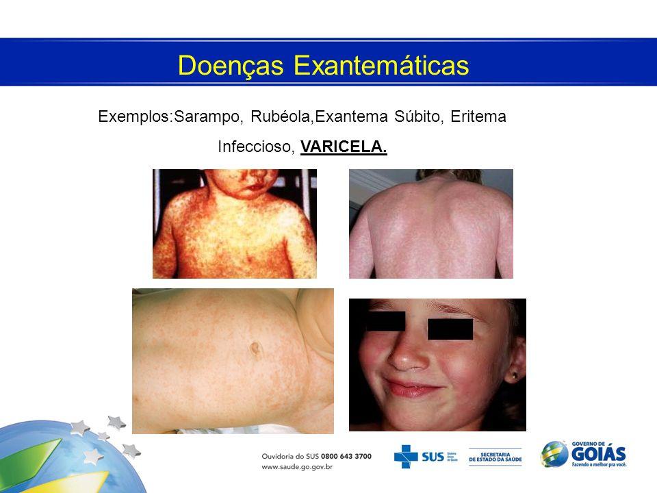 Doenças Exantemáticas Exemplos:Sarampo, Rubéola,Exantema Súbito, Eritema Infeccioso, VARICELA.