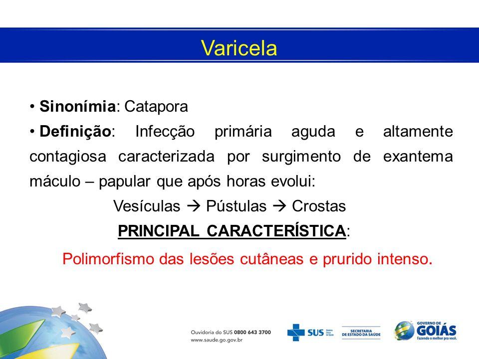 Varicela Sinonímia: Catapora Definição: Infecção primária aguda e altamente contagiosa caracterizada por surgimento de exantema máculo – papular que a