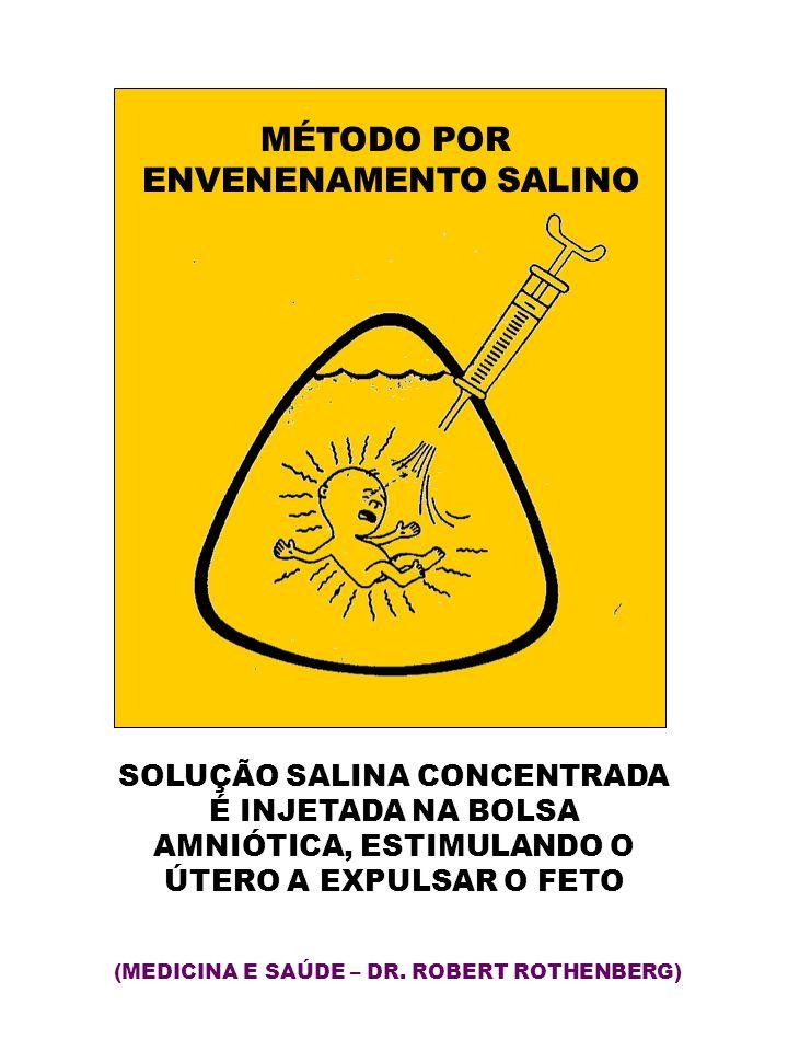 MÉTODO POR ENVENENAMENTO SALINO SOLUÇÃO SALINA CONCENTRADA É INJETADA NA BOLSA AMNIÓTICA, ESTIMULANDO O ÚTERO A EXPULSAR O FETO (MEDICINA E SAÚDE – DR