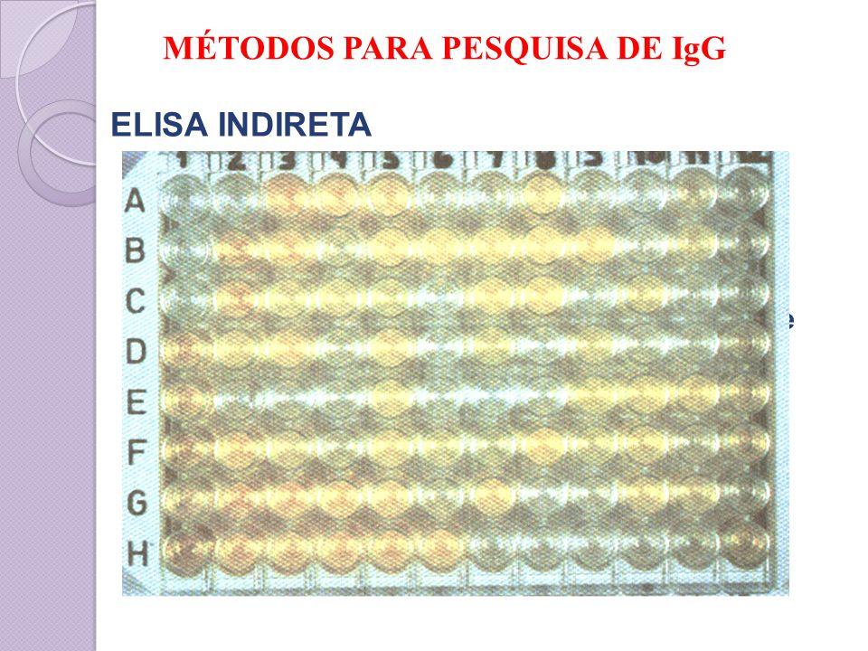 ELISA INDIRETA IgM - Reações falso-negativas, competição com IgG ELISA-IgM captura – elimina interferência de IgG Sensibilidade para toxo congênita de