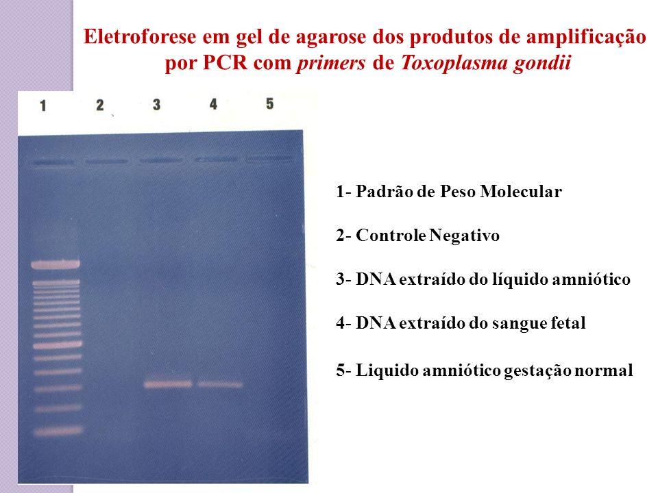 Eletroforese em gel de agarose dos produtos de amplificação por PCR com primers de Toxoplasma gondii 1- Padrão de Peso Molecular 2- Controle Negativo