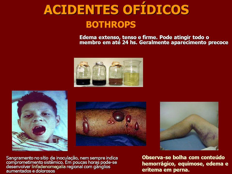 ACIDENTES OFÍDICOS BOTHROPS Observa-se bolha com conteúdo hemorrágico, equimose, edema e eritema em perna. Edema extenso, tenso e firme. Pode atingir