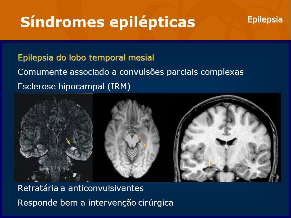 Epilepsia Síndromes epilépticas Epilepsia do lobo temporal mesial Comumente associado a convulsões parciais complexas Esclerose hipocampal (IRM) Refra