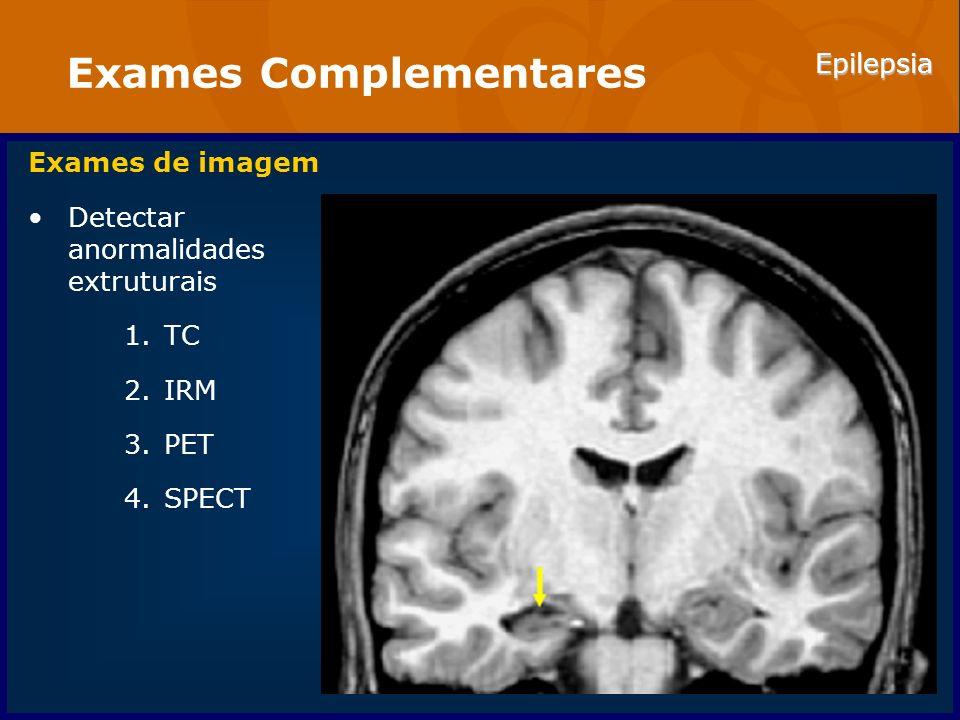 Epilepsia Exames Complementares Exames de imagem Detectar anormalidades extruturais 1.TC 2.IRM 3.PET 4.SPECT
