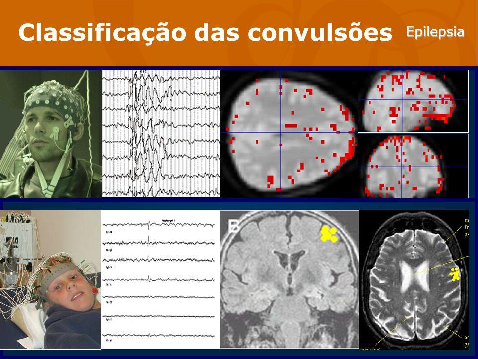 Epilepsia Abordagem do paciente com convulsão Exame neurológico 1.Função cortical difusa e hemisfério específica Estado mental Memória Linguagem Pensamento 2.Campos visuais 3.Função motora Motricidade Reflexos Marcha coordenação 4.Sensibilidade cortical