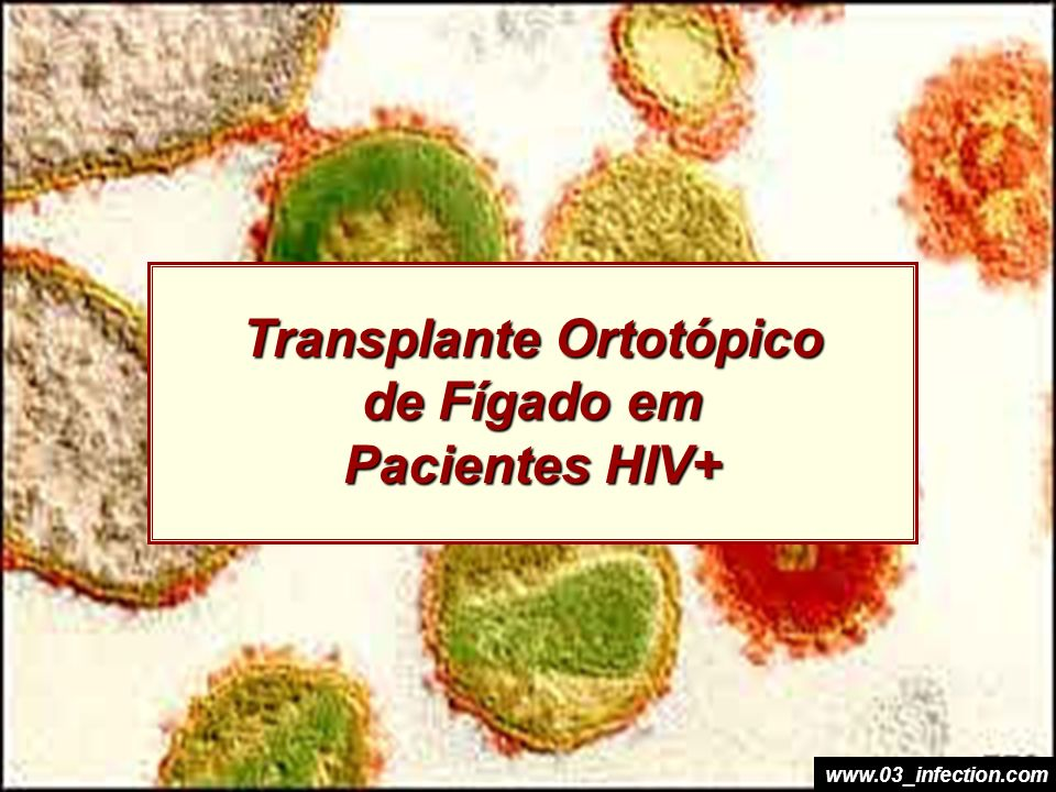 Transplante Ortotópico de Fígado em Pacientes HIV+ www.03_infection.com