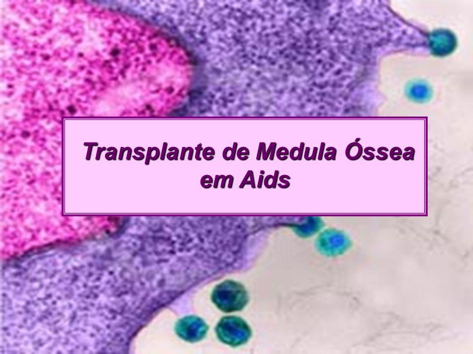 Transplante de Medula Óssea Transplante de Medula Óssea em Aids