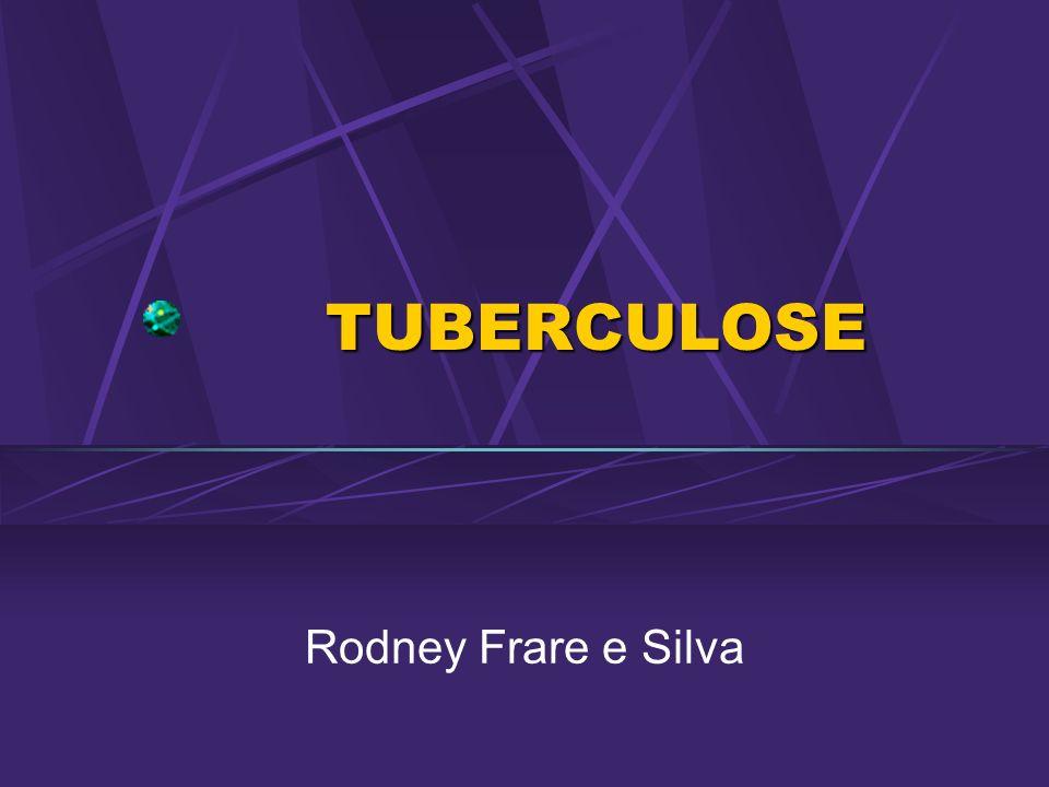 TUBERCULOSE TUBERCULOSE Rodney Frare e Silva