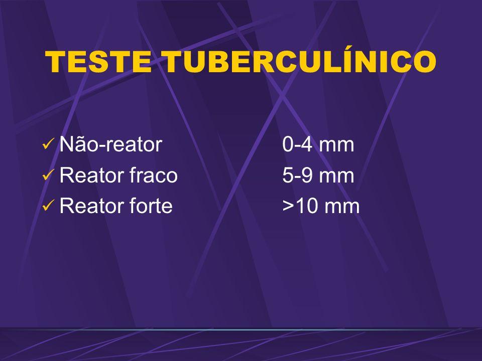 TESTE TUBERCULÍNICO Não-reator0-4 mm Reator fraco5-9 mm Reator forte>10 mm
