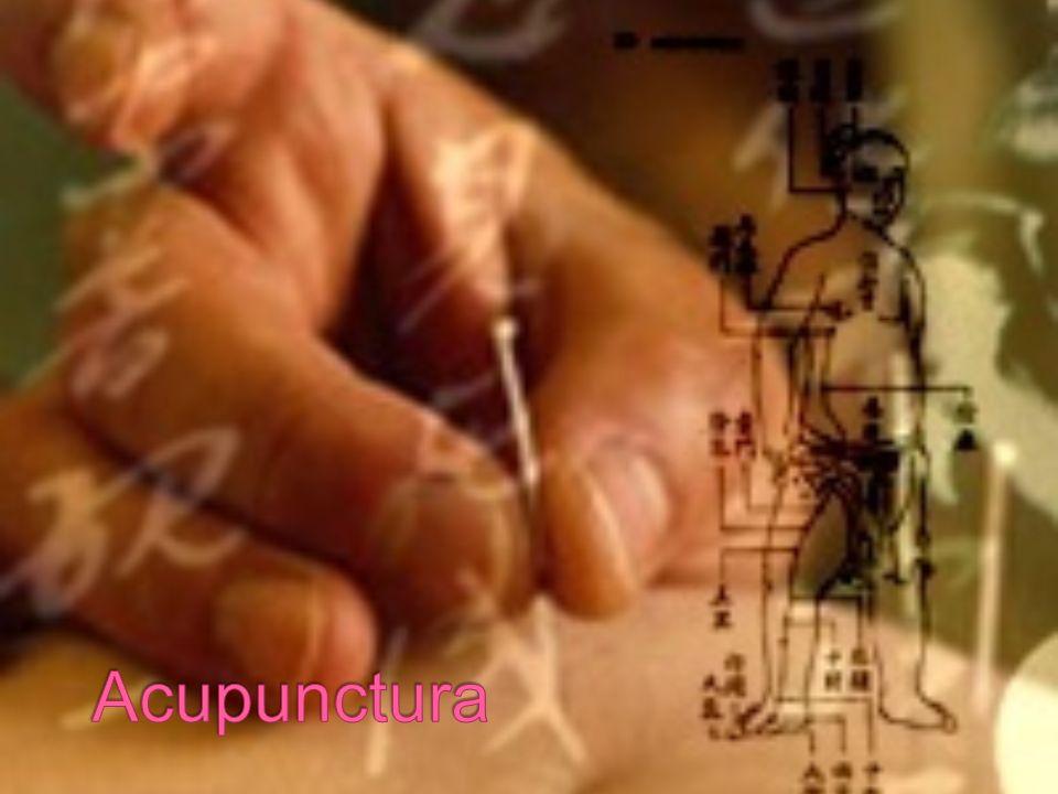 5000 anos; China Consiste na introdução de agulhas de aço inoxidável em várias áreas do corpo;