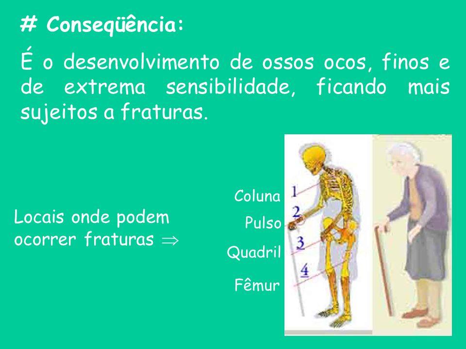 # Conseqüência: É o desenvolvimento de ossos ocos, finos e de extrema sensibilidade, ficando mais sujeitos a fraturas. Coluna Pulso Quadril Fêmur Loca