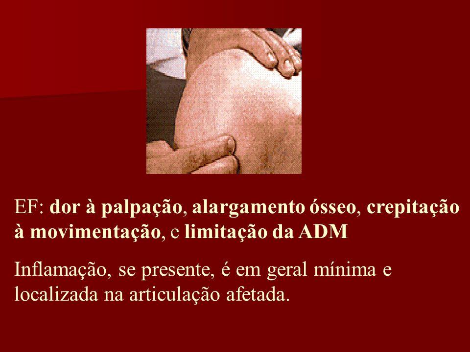 EF: dor à palpação, alargamento ósseo, crepitação à movimentação, e limitação da ADM Inflamação, se presente, é em geral mínima e localizada na articu