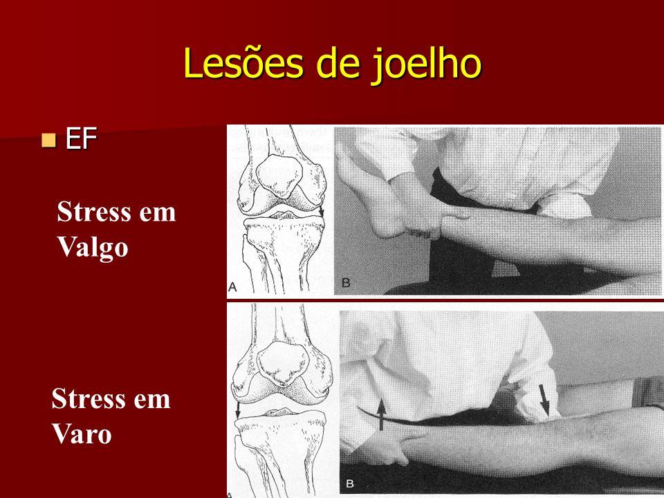 Lesões de joelho EF EF Stress em Varo Stress em Valgo