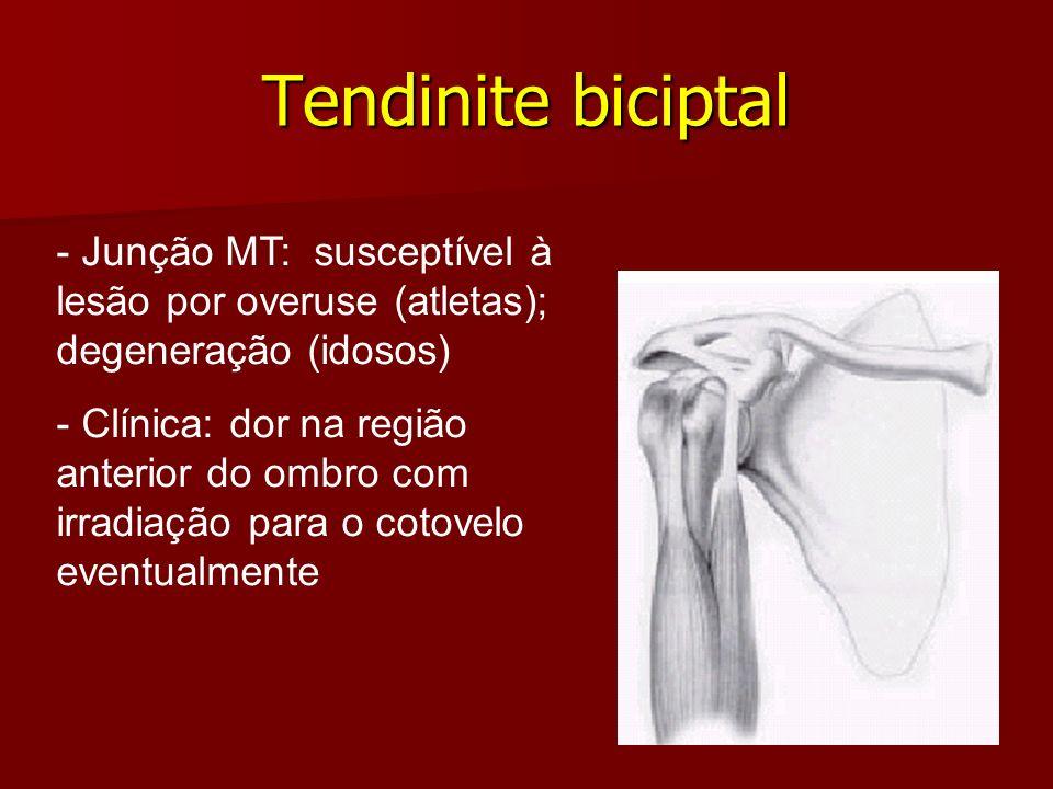 Tendinite biciptal - Junção MT: susceptível à lesão por overuse (atletas); degeneração (idosos) - Clínica: dor na região anterior do ombro com irradia