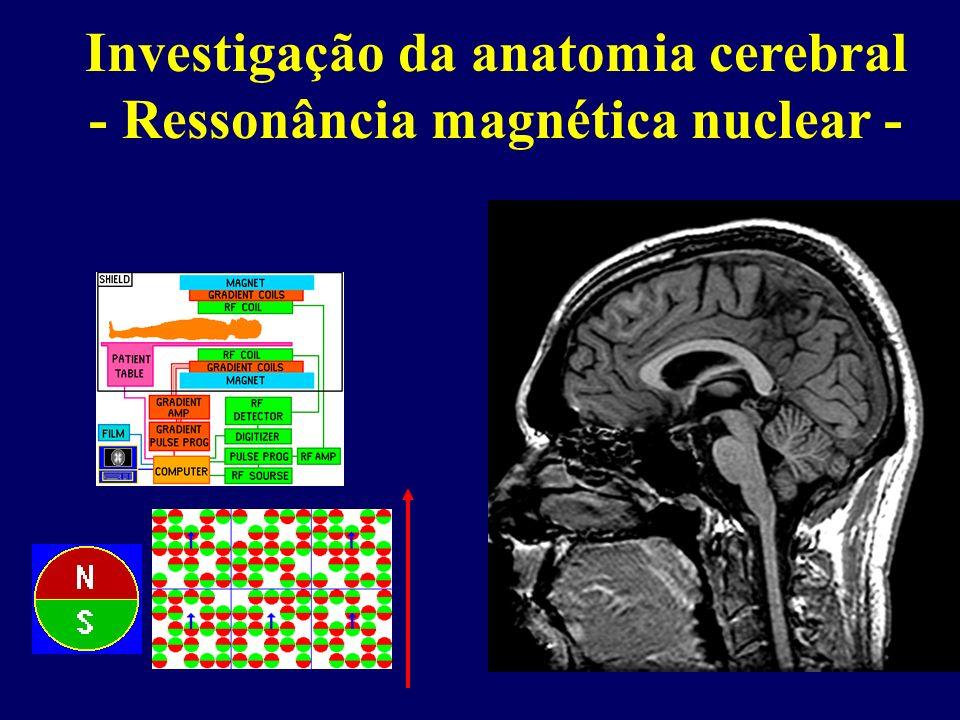 Exames complementares -1976 – Johnstone et al, Lancet: -Tomografia computadorizada de crânio realizada com protocolo de aquisição estruturado em 18 pa