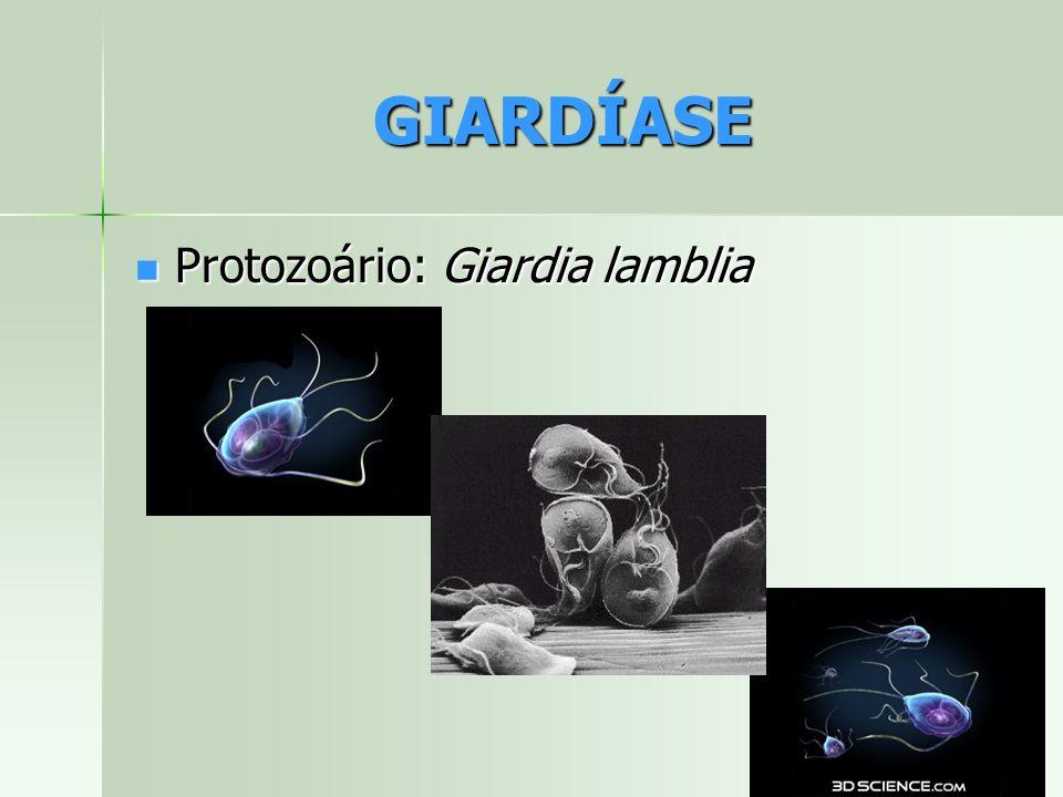 GIARDÍASE Protozoário: Giardia lamblia Protozoário: Giardia lamblia