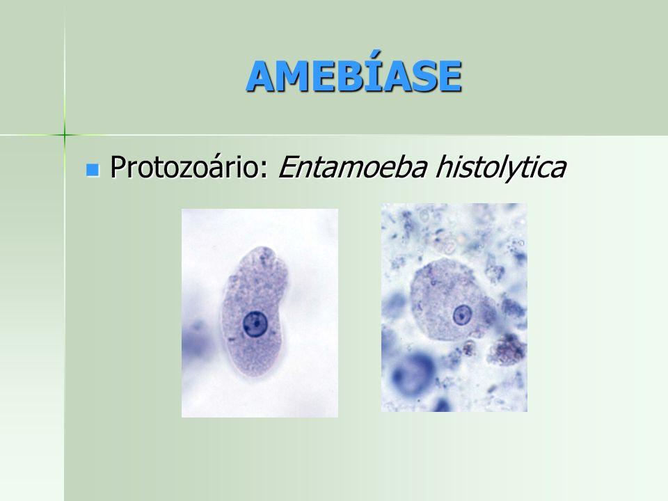 AMEBÍASE Protozoário: Entamoeba histolytica Protozoário: Entamoeba histolytica