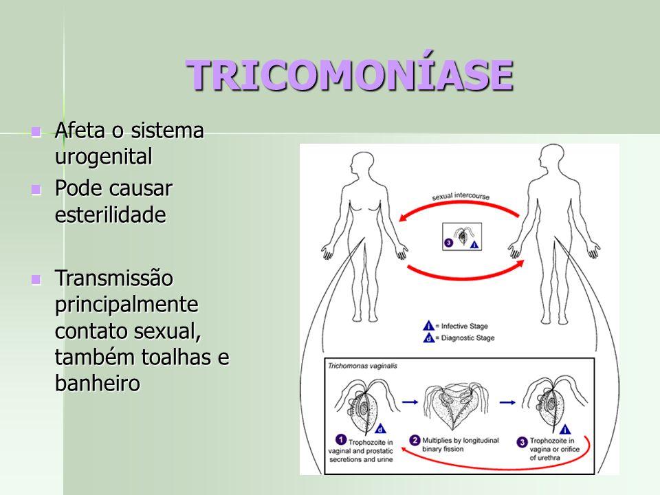 TRICOMONÍASE Afeta o sistema urogenital Afeta o sistema urogenital Pode causar esterilidade Pode causar esterilidade Transmissão principalmente contat