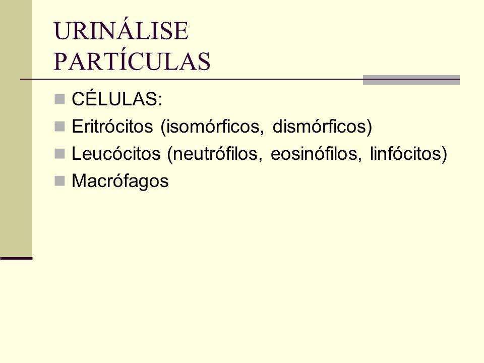 URINÁLISE PARTÍCULAS CÉLULAS: Eritrócitos (isomórficos, dismórficos) Leucócitos (neutrófilos, eosinófilos, linfócitos) Macrófagos