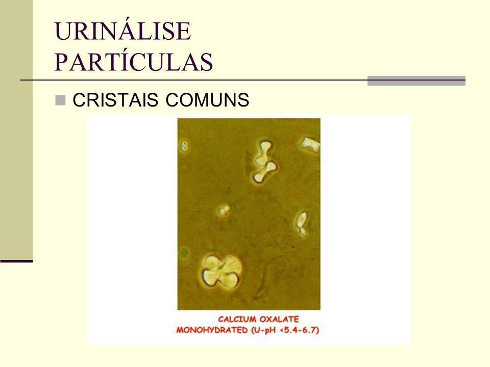 URINÁLISE PARTÍCULAS CRISTAIS COMUNS