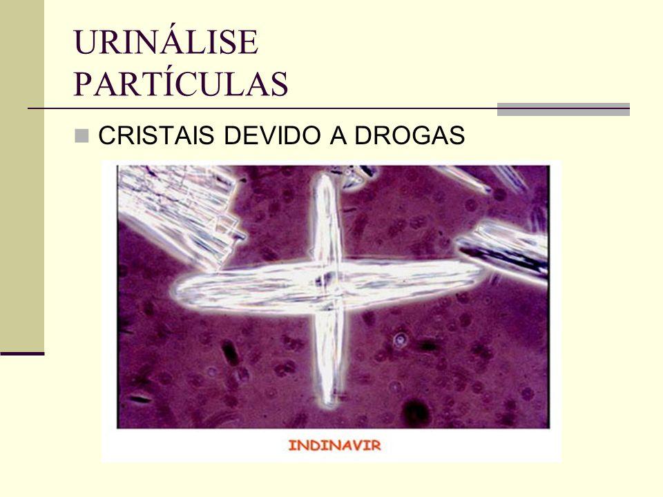 URINÁLISE PARTÍCULAS CRISTAIS DEVIDO A DROGAS