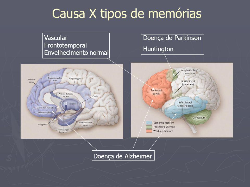 Causa X tipos de memórias Doença de Parkinson Huntington Doença de Alzheimer Vascular Frontotemporal Envelhecimento normal