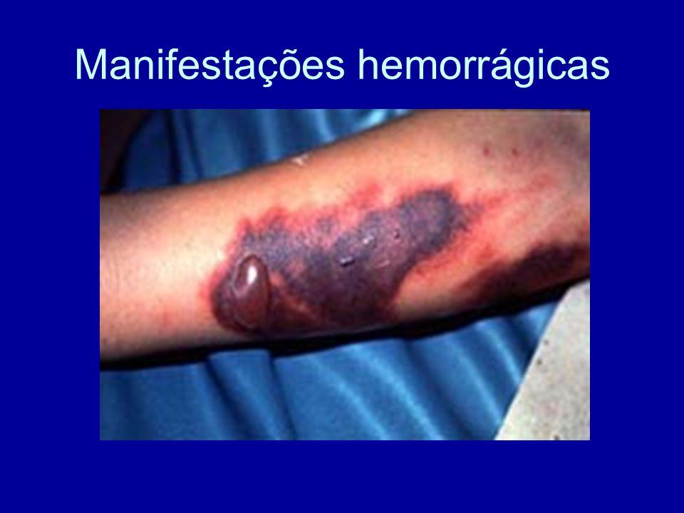 Manifestações hemorrágicas