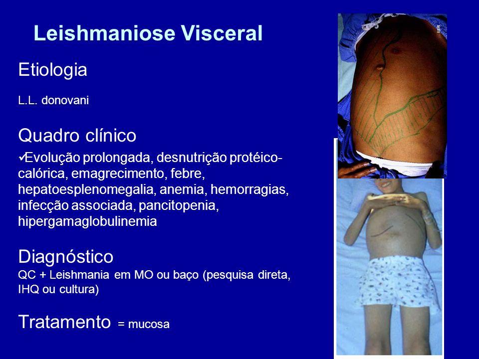 Leishmaniose Visceral Etiologia L.L. donovani Quadro clínico Evolução prolongada, desnutrição protéico- calórica, emagrecimento, febre, hepatoesplenom