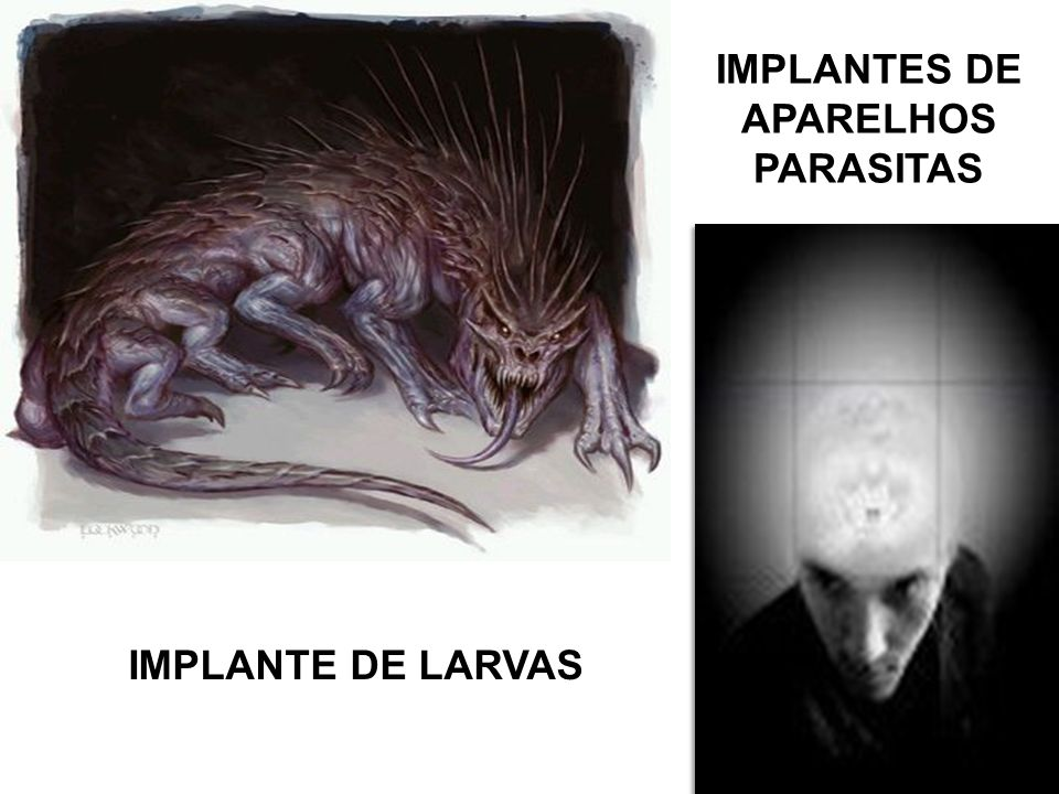 IMPLANTES DE APARELHOS PARASITAS IMPLANTE DE LARVAS