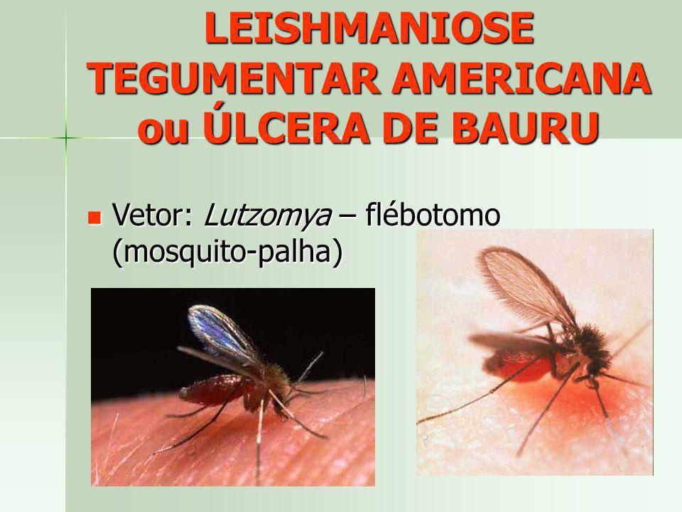 LEISHMANIOSE TEGUMENTAR AMERICANA ou ÚLCERA DE BAURU Vetor: Lutzomya – flébotomo (mosquito-palha) Vetor: Lutzomya – flébotomo (mosquito-palha)