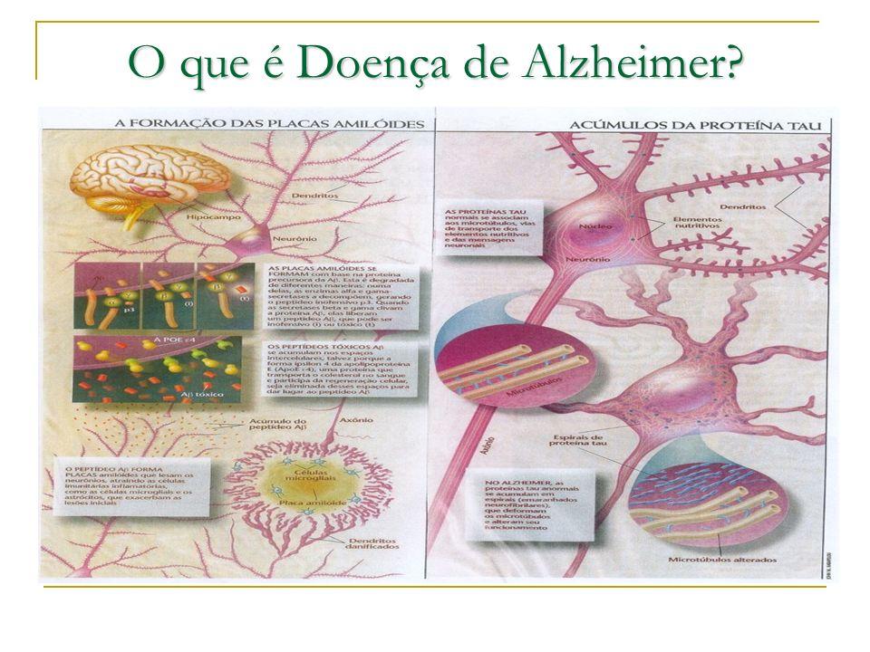 O que é Doença de Alzheimer?