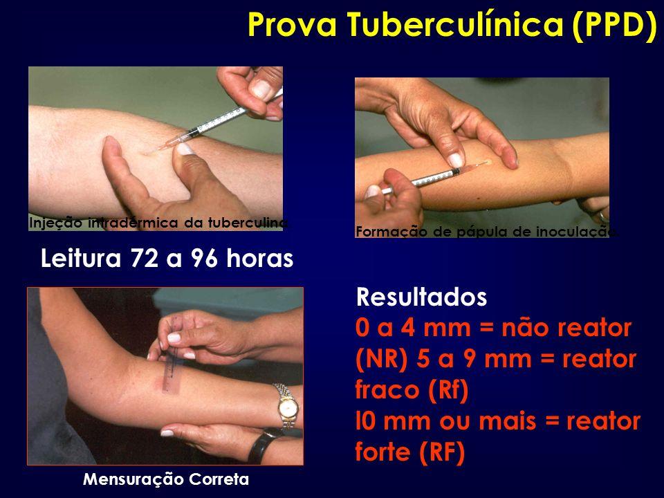 Injeção intradérmica da tuberculina. Formação de pápula de inoculação. Mensuração Correta Resultados 0 a 4 mm = não reator (NR) 5 a 9 mm = reator frac