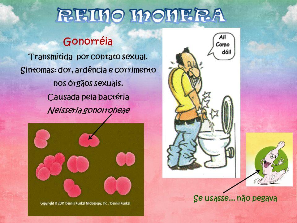 Gonorréia Transmitida por contato sexual. Sintomas: dor, ardência e corrimento nos órgãos sexuais. Causada pela bactéria Neisseria gonorroheae Se usas